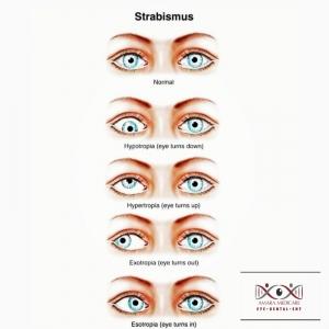 strabismus.jpeg