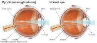 Image of Myopia