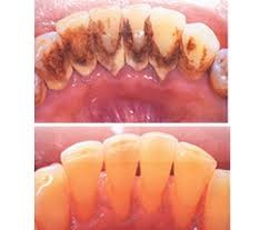 Image of teeth before and after scaling and polishing