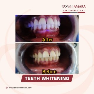 Before and after picture of Teeth whitened by AMARA MEDICARE LAGOS
