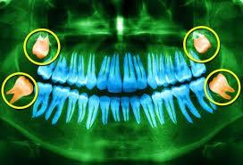 Image of wisdom tooth