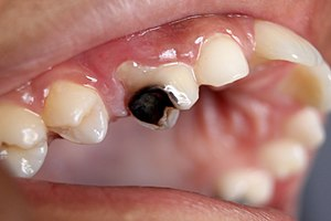 Image of tooth decay